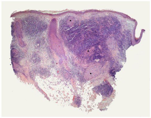Infiltrado inflamatório granulomatoso compatível com hanseníase tuberculoide - Sanar Medicina